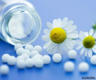 Homeopathic Treatment for Cellulitis