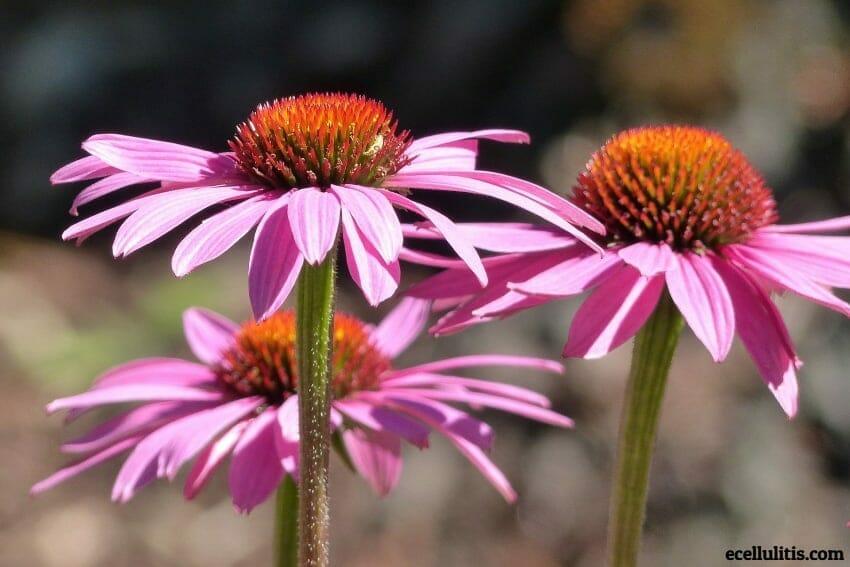 Natural Cellulitis Treatment - Echinacea