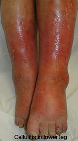 lower leg cellulitis