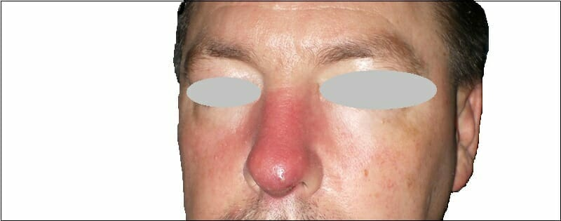 Nasal Cellulitis Infection Image