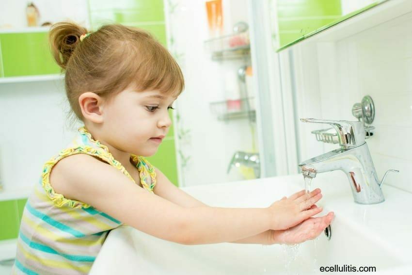 prevention - cellulitis in children