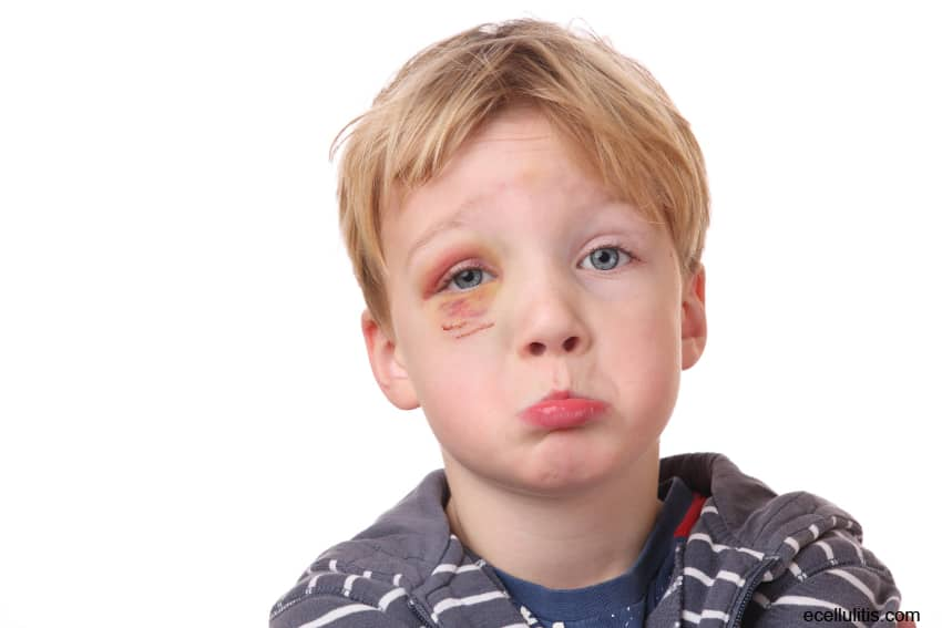 cellulitis In children- symptoms