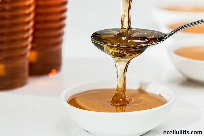 Alternative Treatments for Cellulitis - Manuka Honey