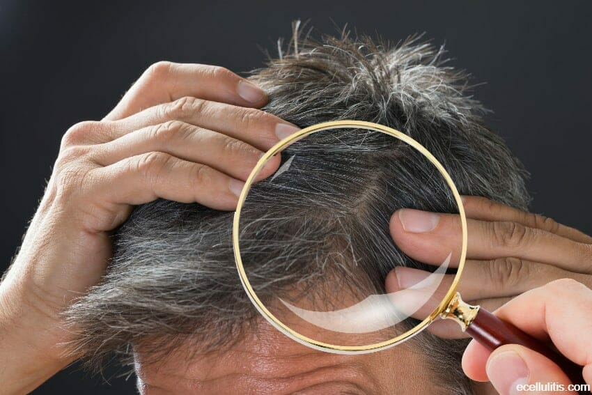 What is Dissecting Cellulitis of the Scalp (PCAS)