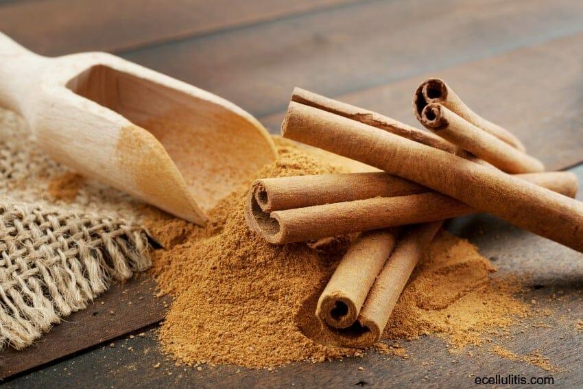 Cinnamon for headache