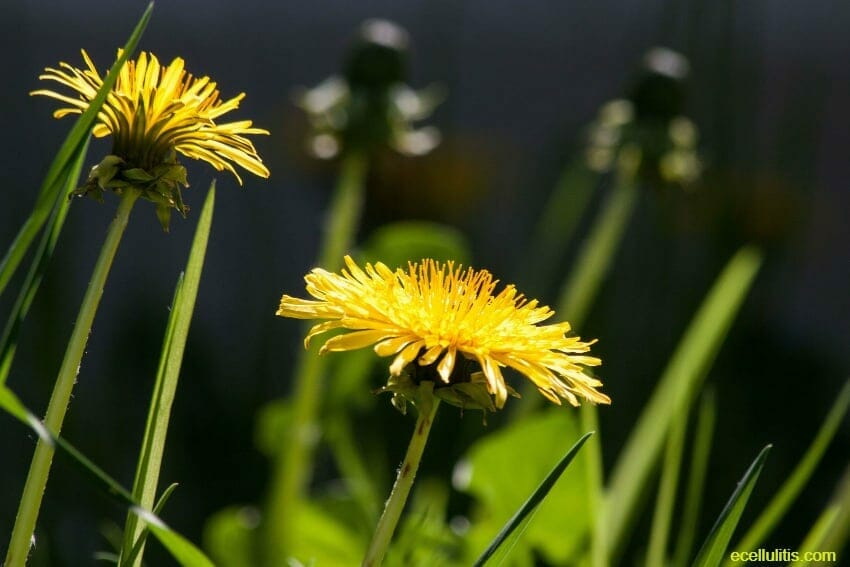 Dandelion - the most powerful summer food for detoxification