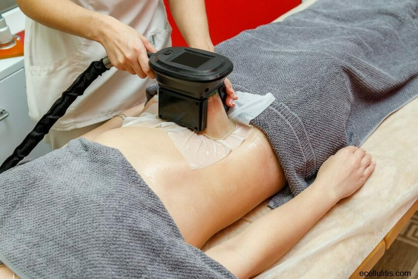 coolsculpting as alternative to a surgical procedure