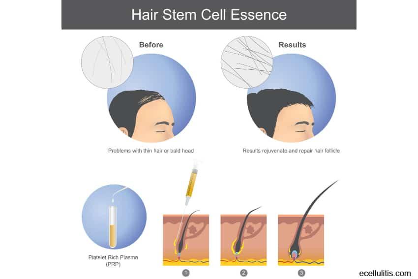 prp hair treatment for hair loss