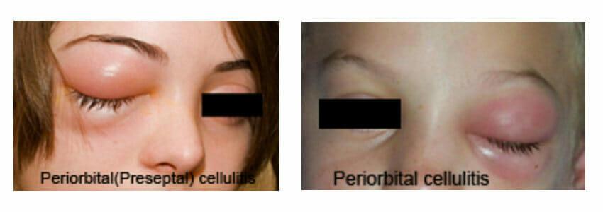 periorbital cellulitis images