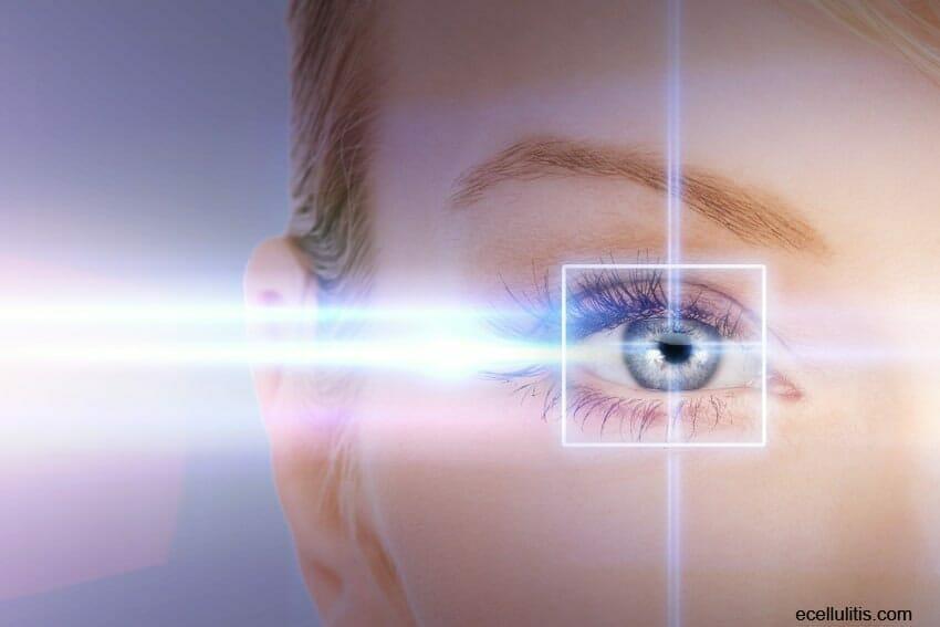 health benefits of eyelid surgery