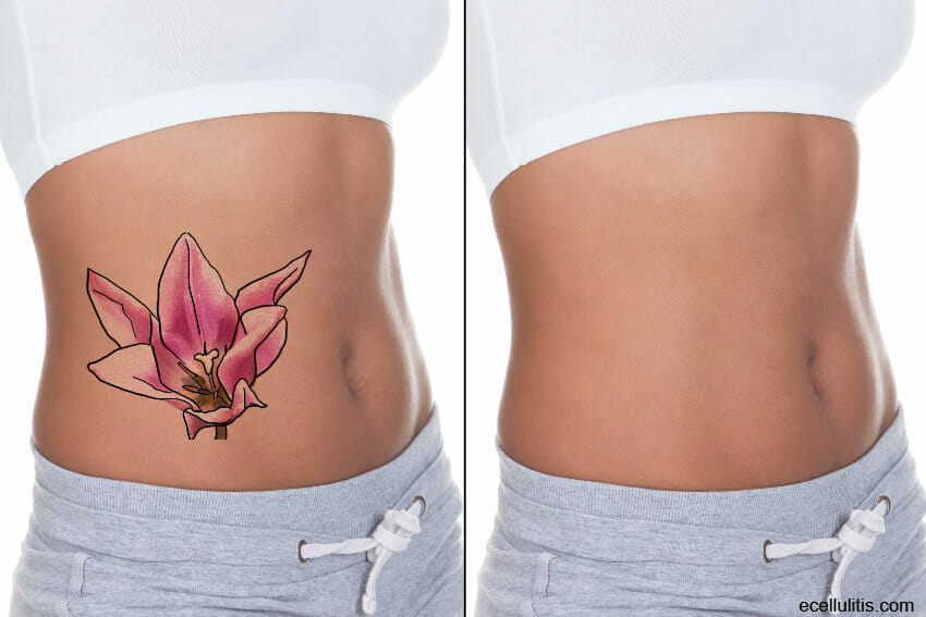 factors that affect laser tattoo removal
