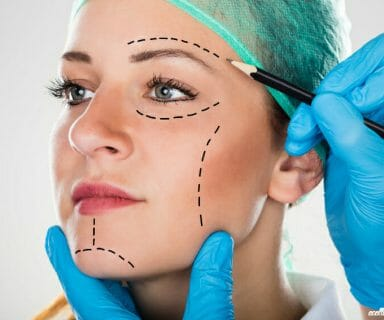 When is the Right Time for Facial Liposuction